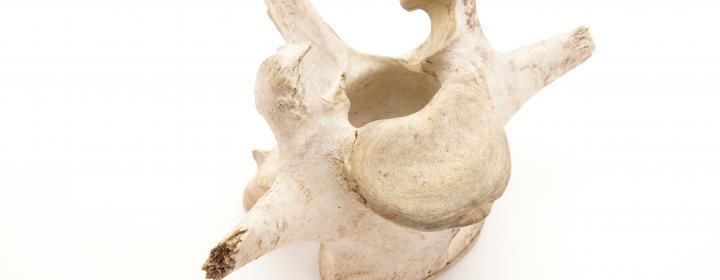 knogle