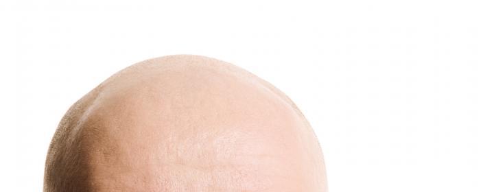 Græskarkerner hårtab
