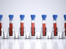 6 blodprøver kan løse mysteriet om dit helbred
